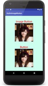 imagebutton 01b - [Android & Kotlin] ImageButton とButtonに画像を貼る